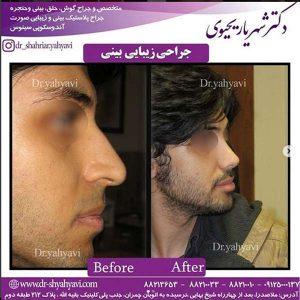 جراحی بینی بسته 2