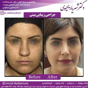 جراحی-زیبایی-بینی-4