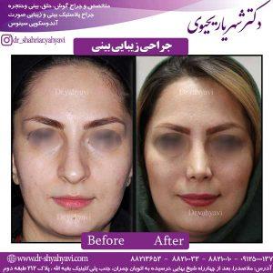 جراحی-زیبایی-بینی2