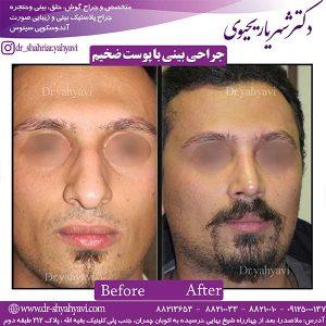 جراحی-بینی-با-پوست-ضخیم-2