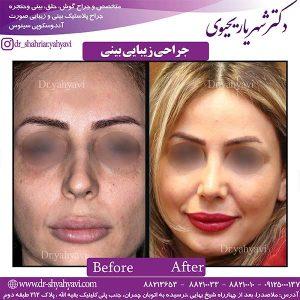 جراحی-زیبایی-بینی-9