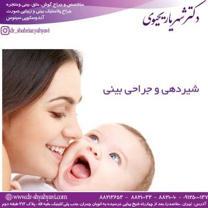 شیردهی و جراحی بینی+