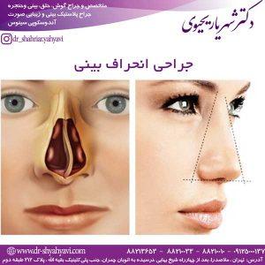 جراحی انحراف بینی