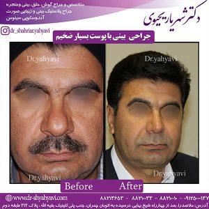 جراحی-بینی-با-پوست-بسیار-ضخیم