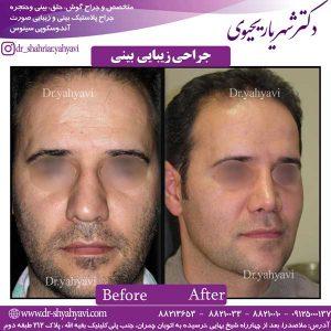 جراحی-زیبایی-بینی-1