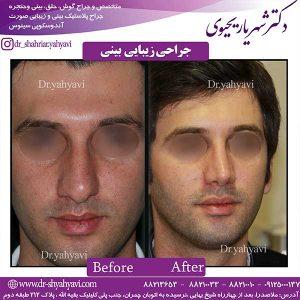 جراحی-زیبایی-بینی-10
