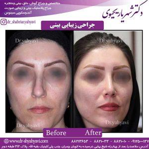 جراحی-زیبایی-بینی-5