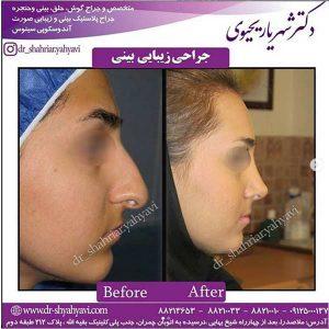 جراحی زیبایی بینی4