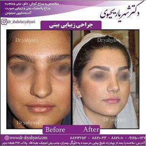 جراح بینی تهران 2