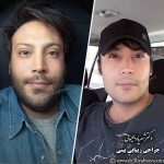 عمل بینی در تهران