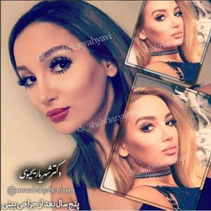 بهترين جراح زيبايي بيني در تهران