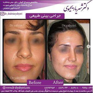 جراحی بینی طبیعی 2