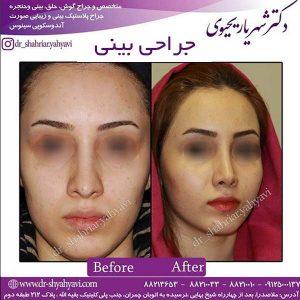 جراح بینی 4