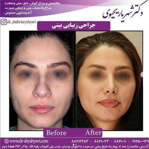 بهترین جراح بینی تهران 2