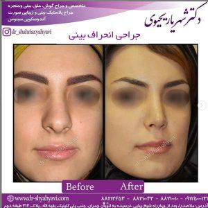 جراحی انحراف بینی 2