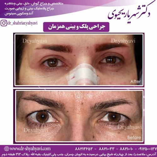 جراحی بینی و پلک همزمان
