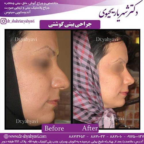 جراحی-بینی-گوشتی-1