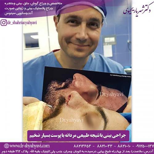 جراحی-بینی-122