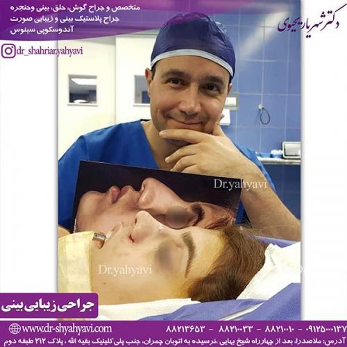 جراحی-بینی-137