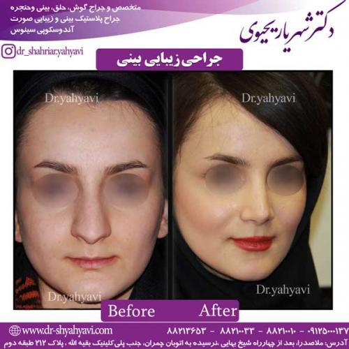 جراحی-زیبایی-بینی