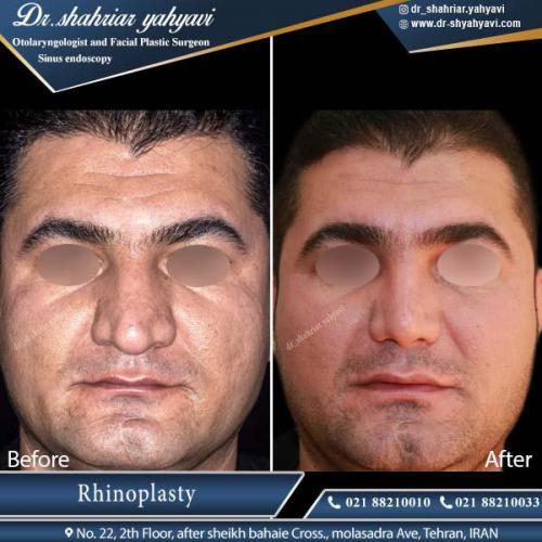 جراحی بینی تهران 6
