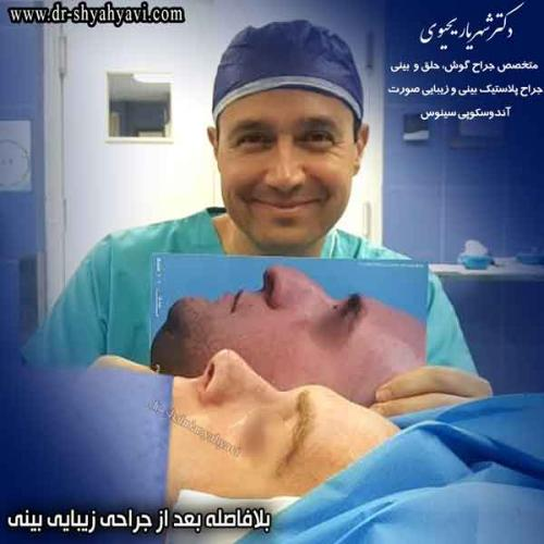 جراحی بینی 382