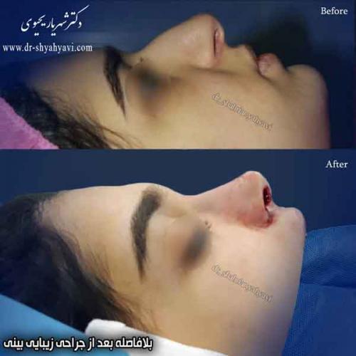 جراحی بینی 409