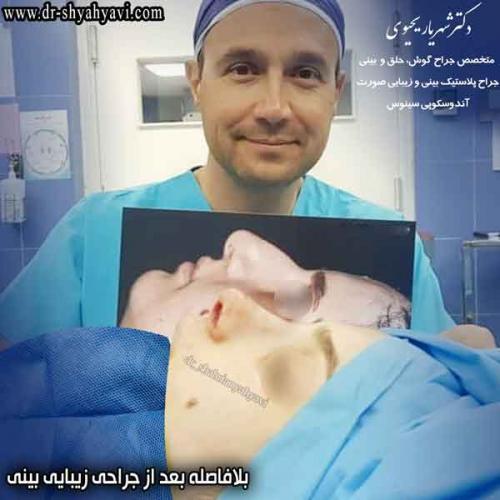 جراحی بینی 410