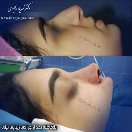 جراحی بینی 416