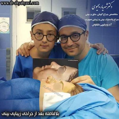 جراحی بینی 419