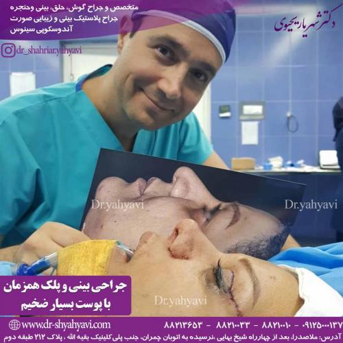 جراحی زیبایی بینی 31