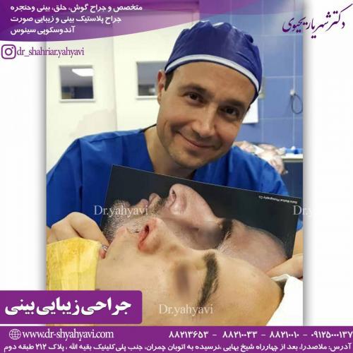 جراحی زیبایی بینی 36