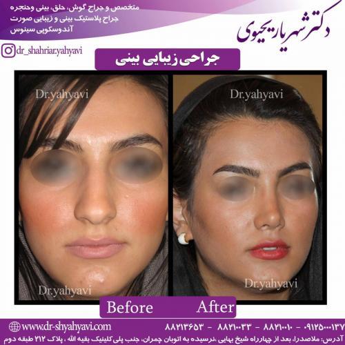 جراحی زیبایی بینی 38