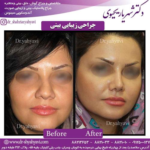 جراحی زیبایی بینی 40
