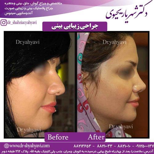 جراحی زیبایی بینی 41