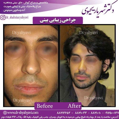 جراحی زیبایی بینی 43