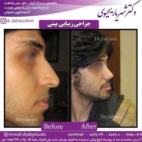 جراحی زیبایی بینی 44