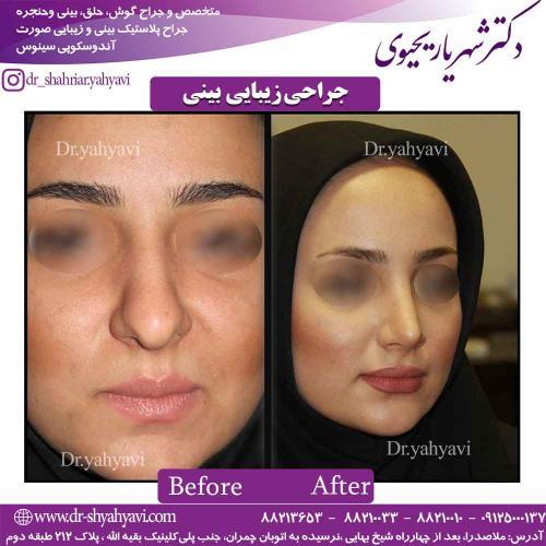 جراحی زیبایی بینی 47