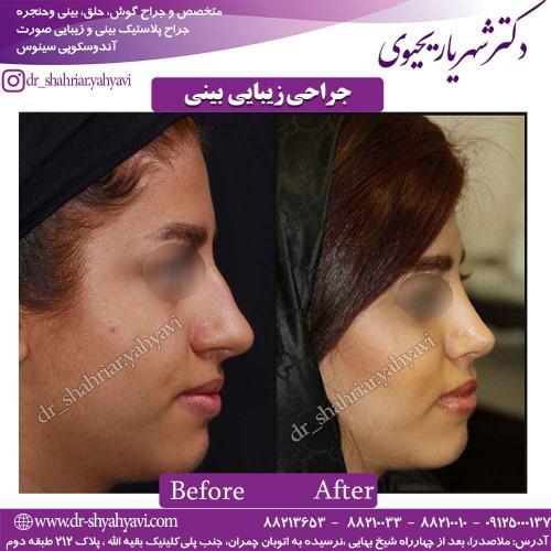 جراحی زیبایی بینی 50