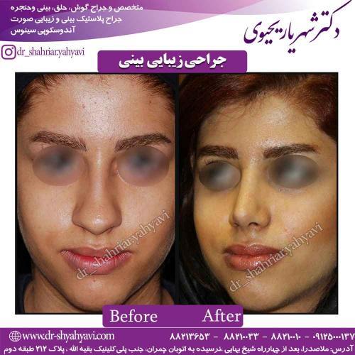جراحی زیبایی بینی 51