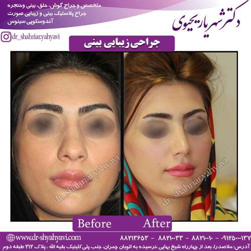 جراحی زیبایی بینی 54